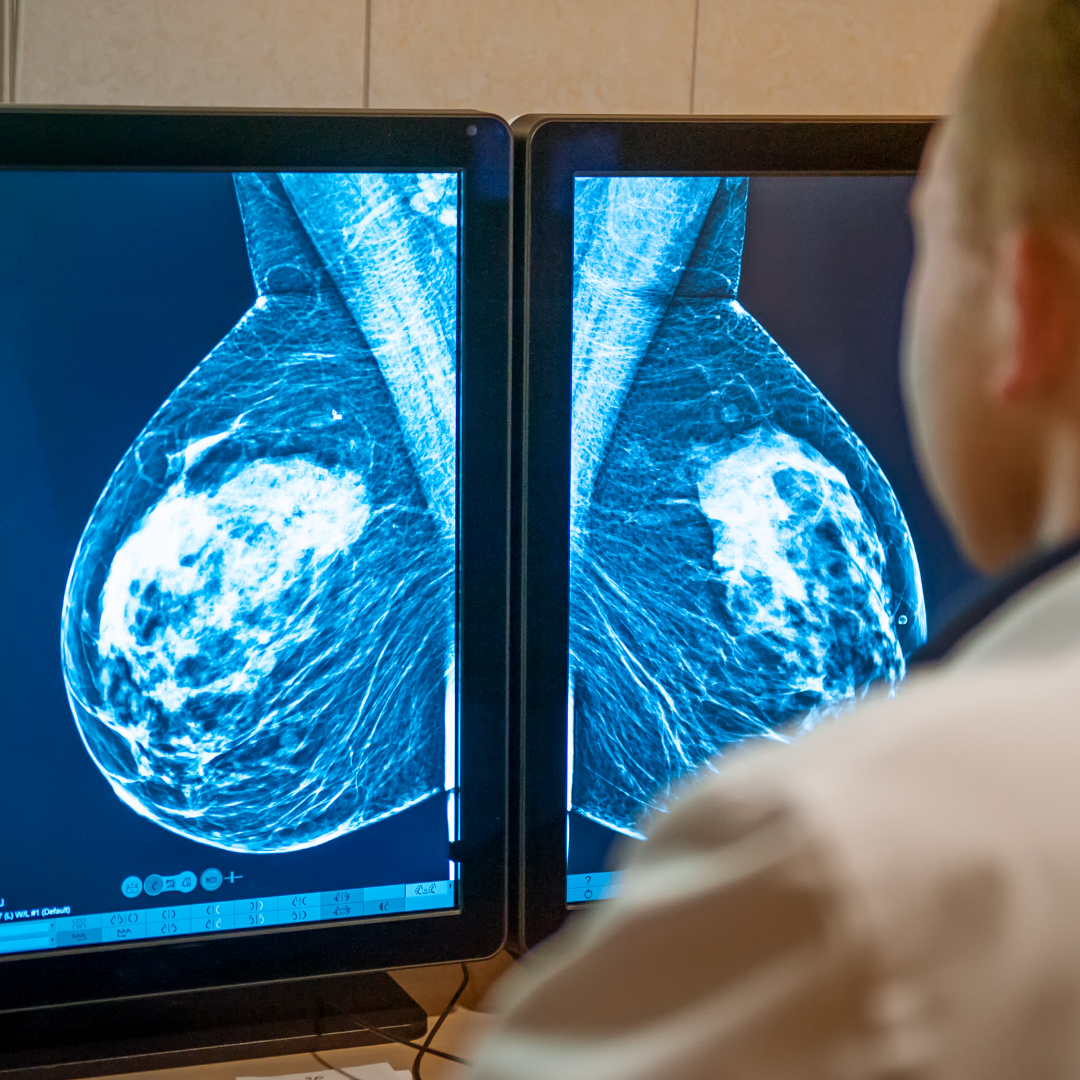 What You Should Know About Digital Mammography